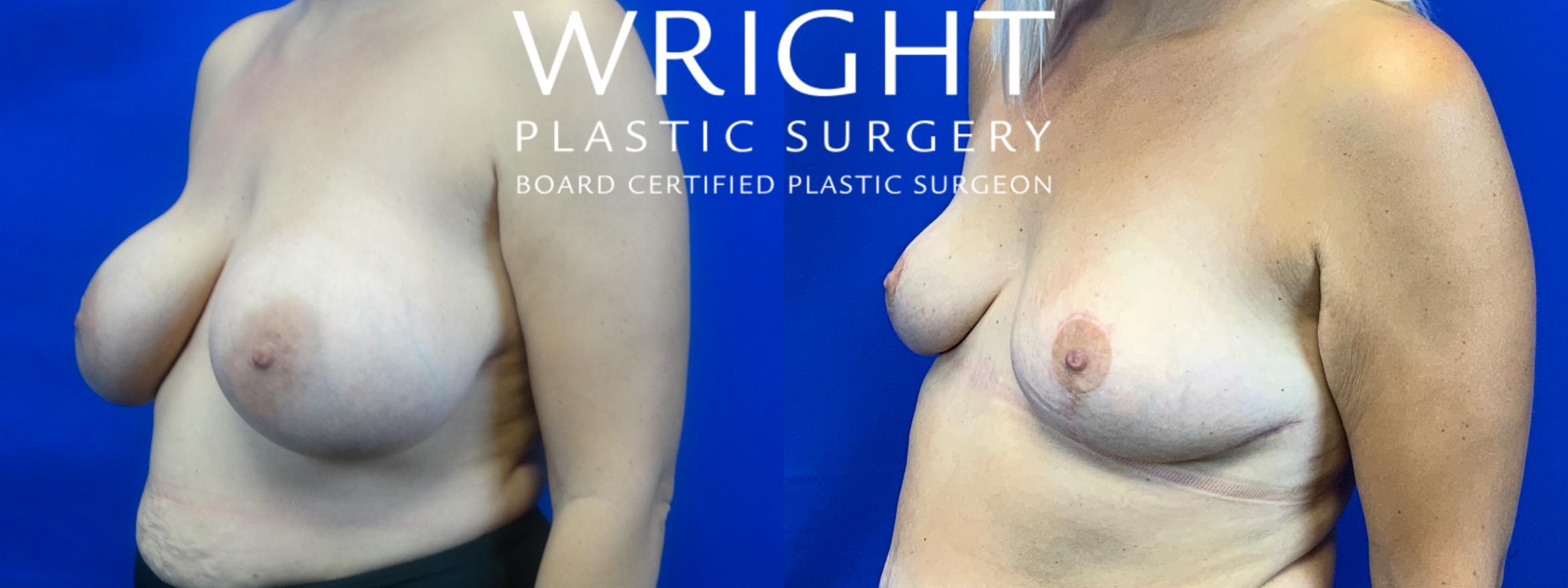 Breast Implant Removal Case 50 Before & After Left Oblique | Little Rock, Arkansas | Dr. Wright Plastic Surgery