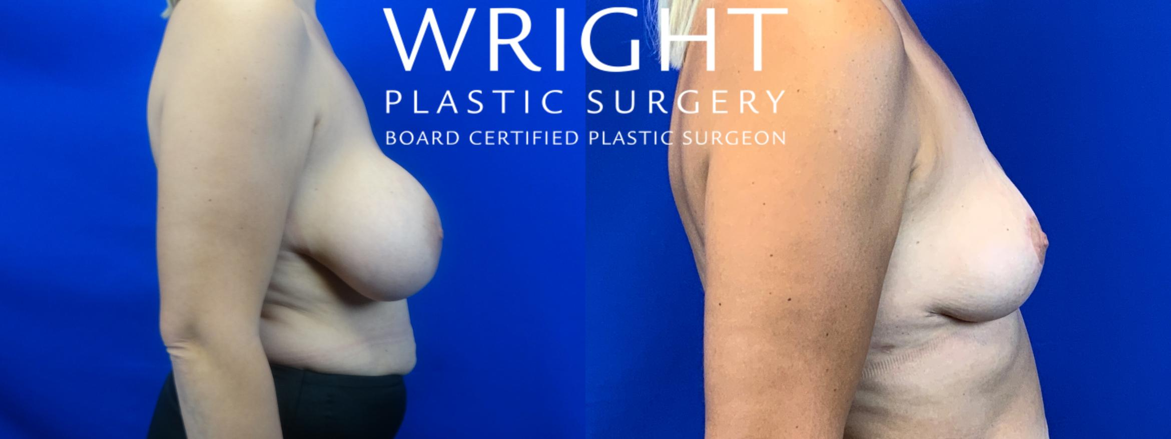 Breast Implant Removal Case 50 Before & After Right Side | Little Rock, Arkansas | Dr. Wright Plastic Surgery