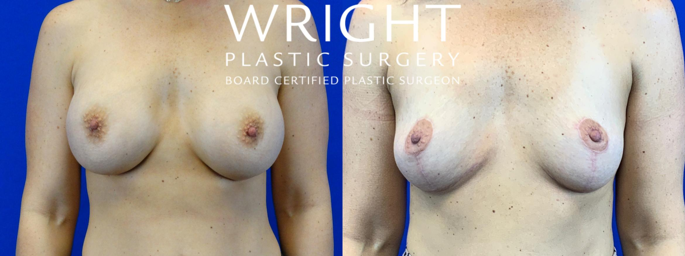 Breast Implant Removal Case 56 Before & After Front | Little Rock, Arkansas | Dr. Wright Plastic Surgery