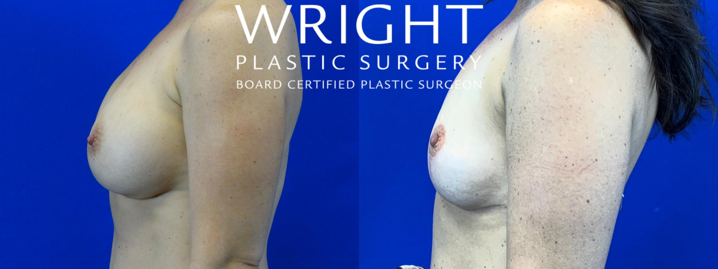 Breast Implant Removal Case 56 Before & After Left Side | Little Rock, Arkansas | Dr. Wright Plastic Surgery