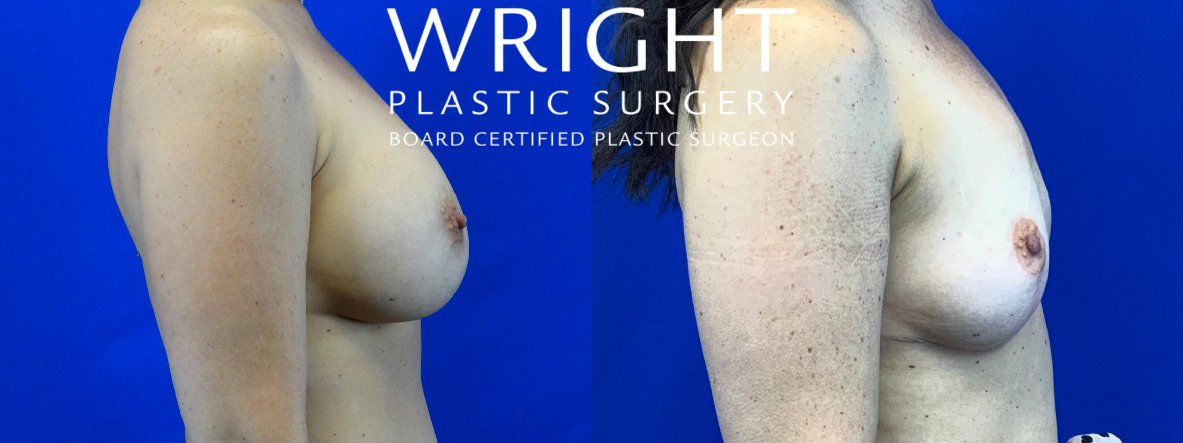Breast Implant Removal Case 56 Before & After Right Side | Little Rock, Arkansas | Dr. Wright Plastic Surgery