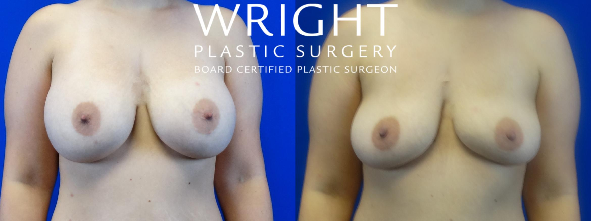 Breast Implant Removal Case 9 Before & After Front | Little Rock, Arkansas | Dr. Wright Plastic Surgery