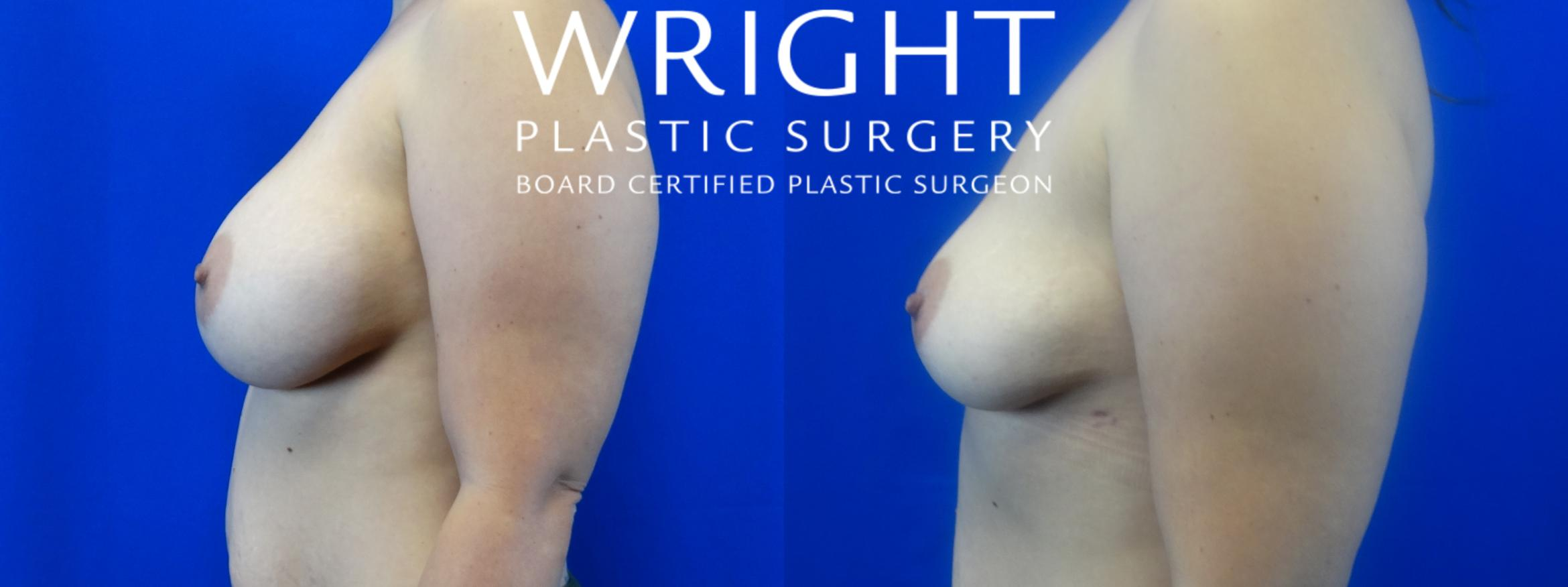 Breast Implant Removal Case 9 Before & After Left Side | Little Rock, Arkansas | Dr. Wright Plastic Surgery