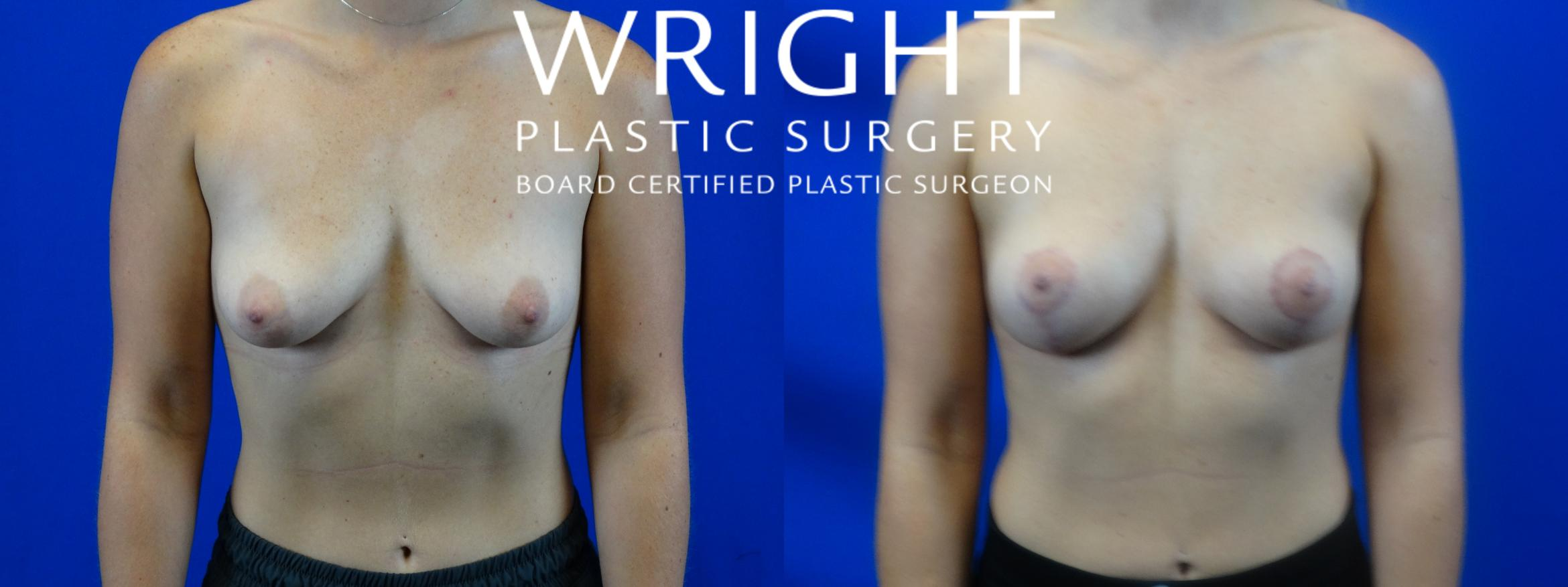 Breast Lift Case 4 Before & After Front | Little Rock, Arkansas | Dr. Wright Plastic Surgery