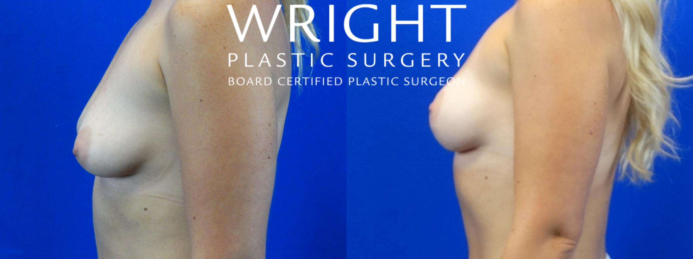 Breast Lift Case 4 Before & After Left Side | Little Rock, Arkansas | Dr. Wright Plastic Surgery