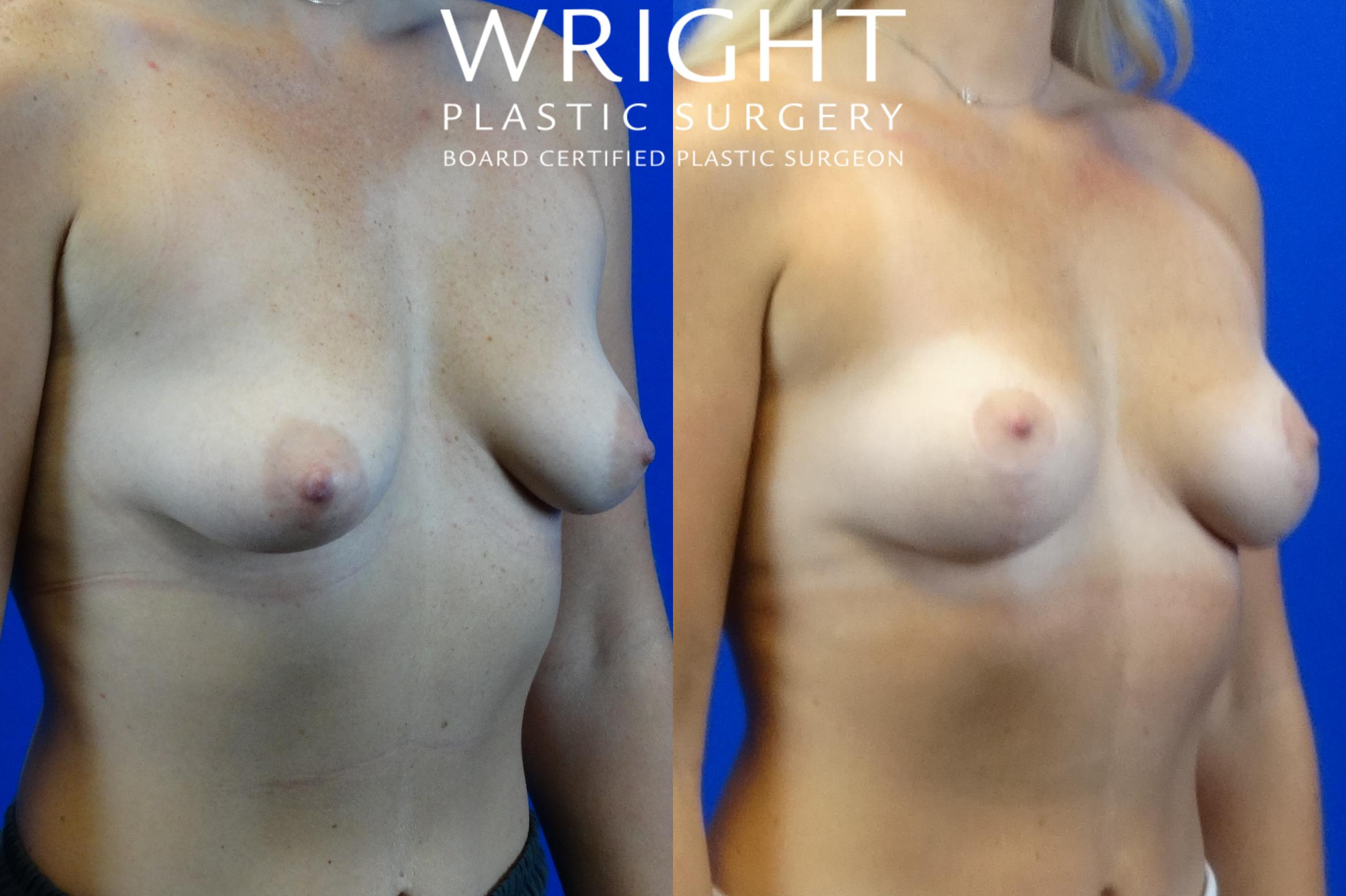 Breast Lift Case 4 Before & After Right Oblique | Little Rock, Arkansas | Dr. Wright Plastic Surgery