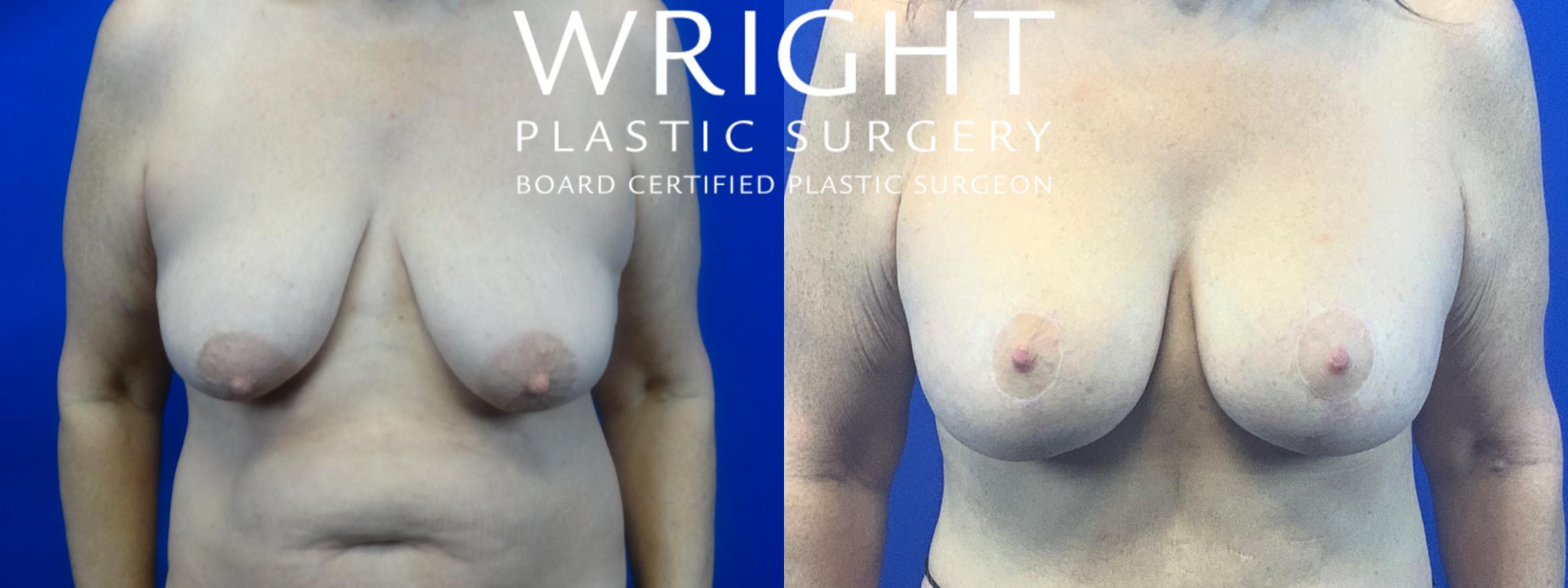 Breast Lift Case 48 Before & After Front | Little Rock, Arkansas | Dr. Wright Plastic Surgery
