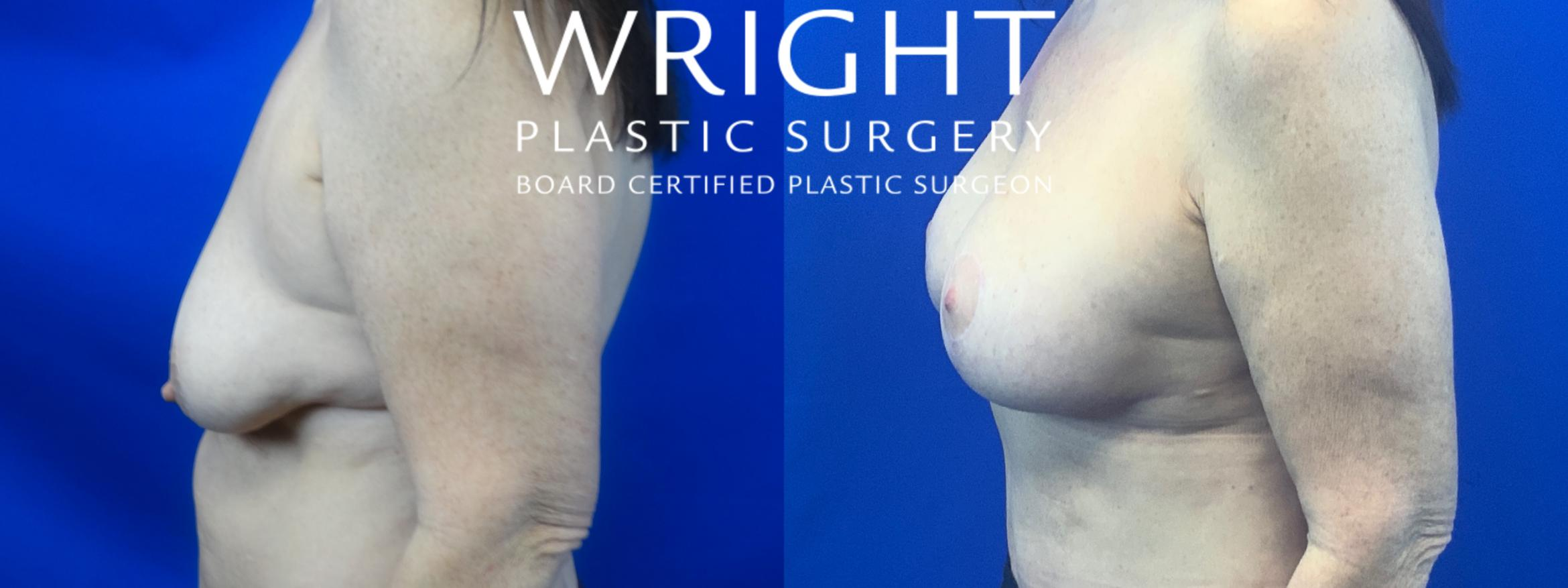 Breast Lift Case 48 Before & After Left Side | Little Rock, Arkansas | Dr. Wright Plastic Surgery