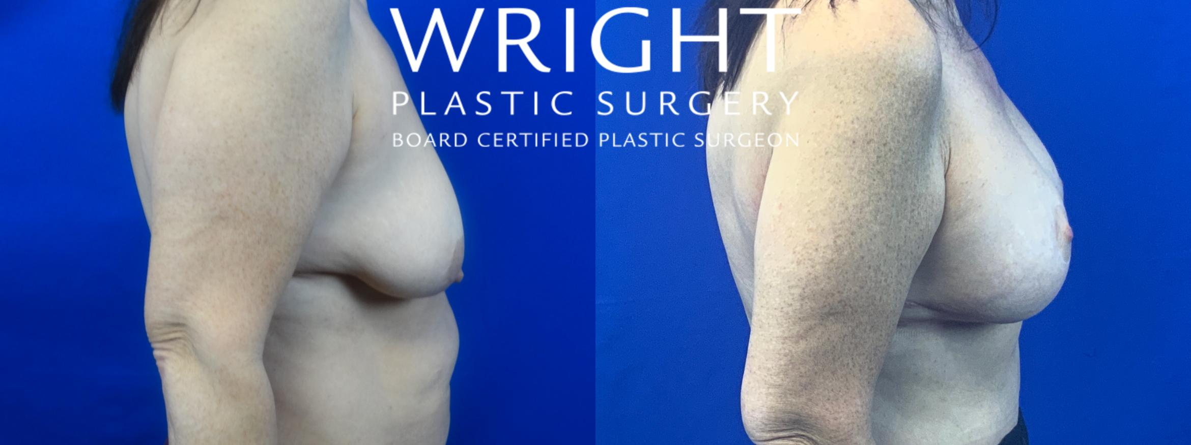 Breast Lift Case 48 Before & After Right Side | Little Rock, Arkansas | Dr. Wright Plastic Surgery