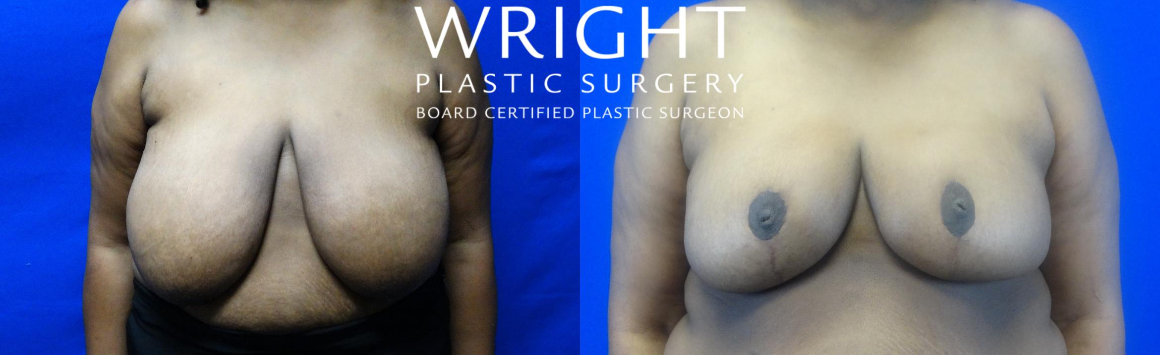 Breast Reduction Case 14 Before & After Front | Little Rock, Arkansas | Dr. Wright Plastic Surgery