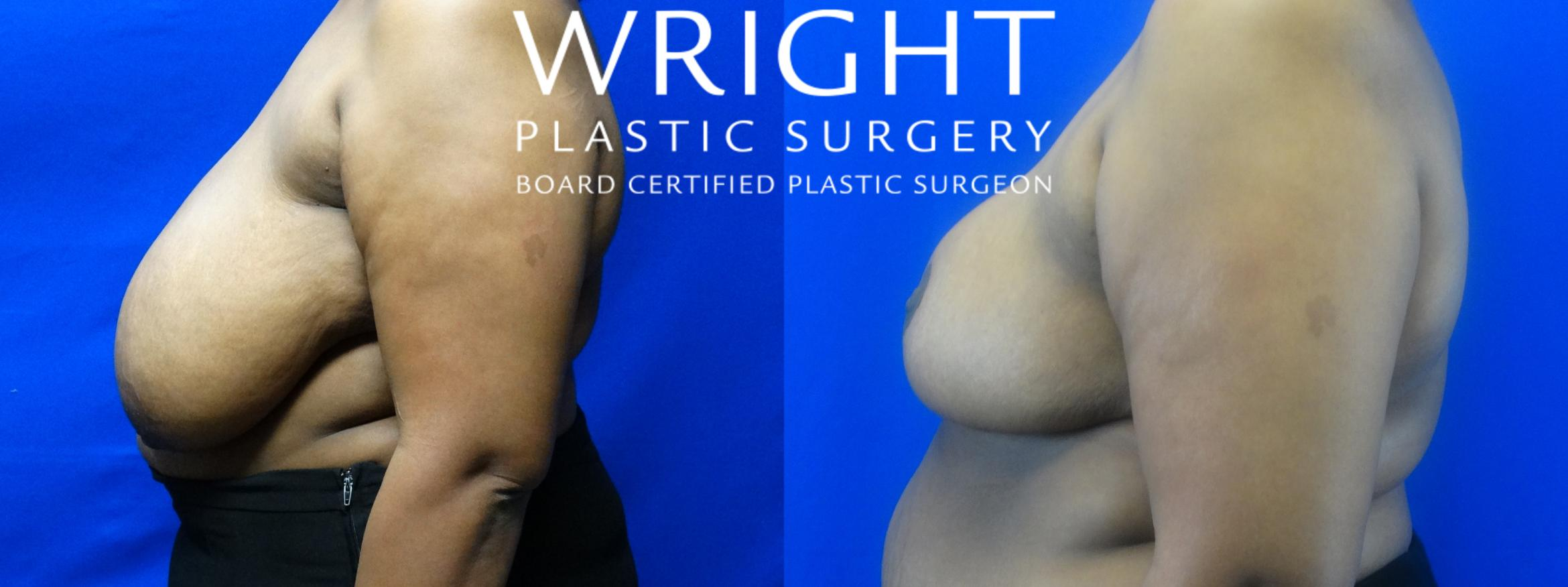 Breast Reduction Case 14 Before & After Left Side | Little Rock, Arkansas | Dr. Wright Plastic Surgery