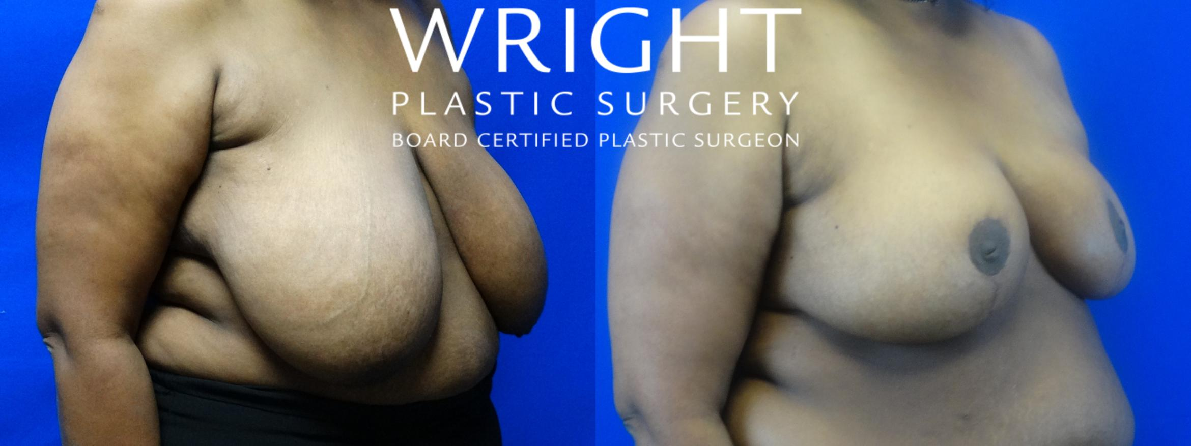 Breast Reduction Case 14 Before & After Right Oblique | Little Rock, Arkansas | Dr. Wright Plastic Surgery
