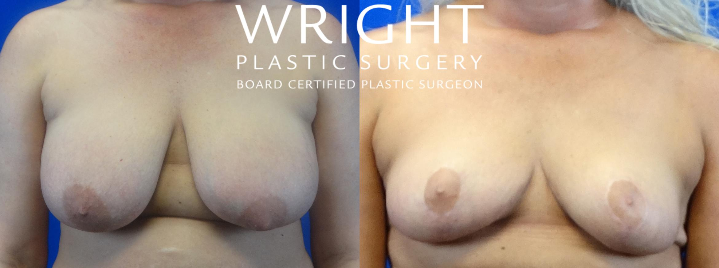 Breast Reduction Case 22 Before & After Front | Little Rock, Arkansas | Dr. Wright Plastic Surgery