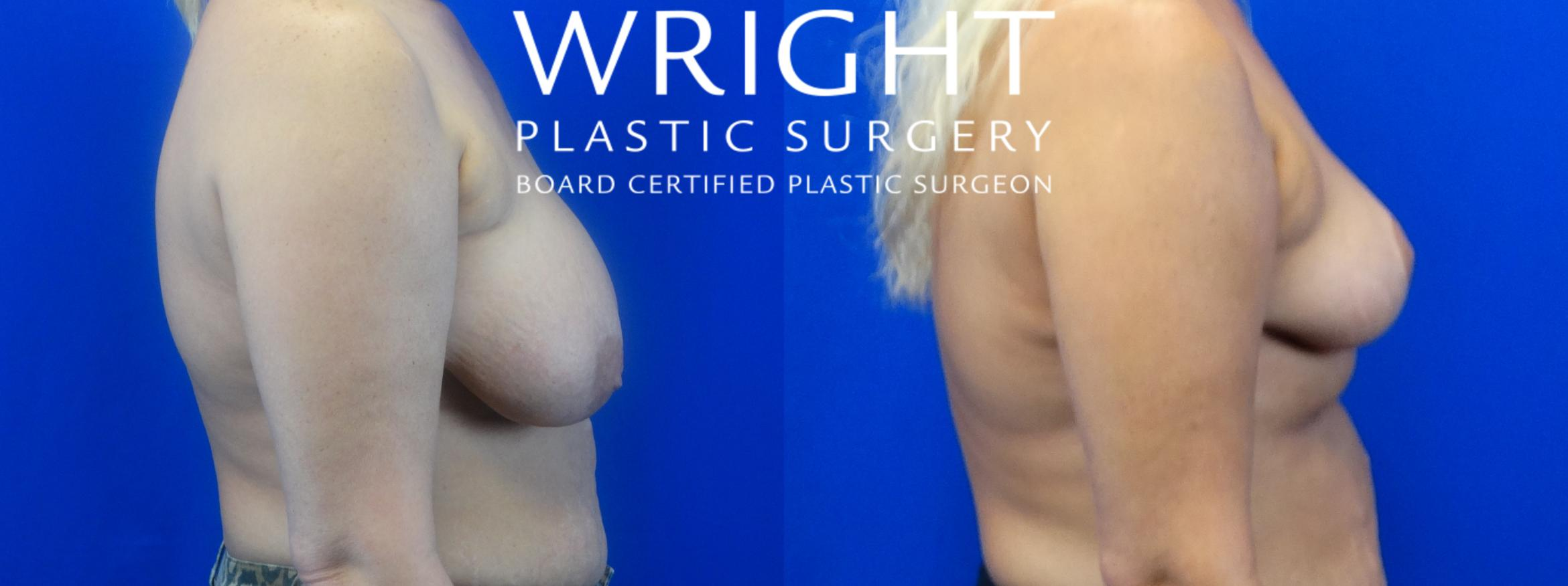Breast Reduction Case 22 Before & After Right Side | Little Rock, Arkansas | Dr. Wright Plastic Surgery