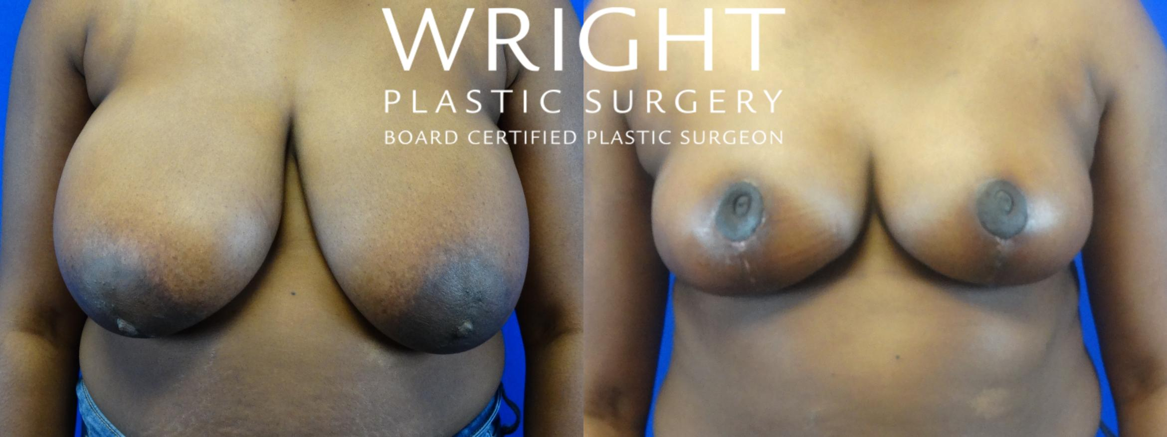 Breast Reduction Case 5 Before & After View 1 | Little Rock, Arkansas | Dr. Wright Plastic Surgery