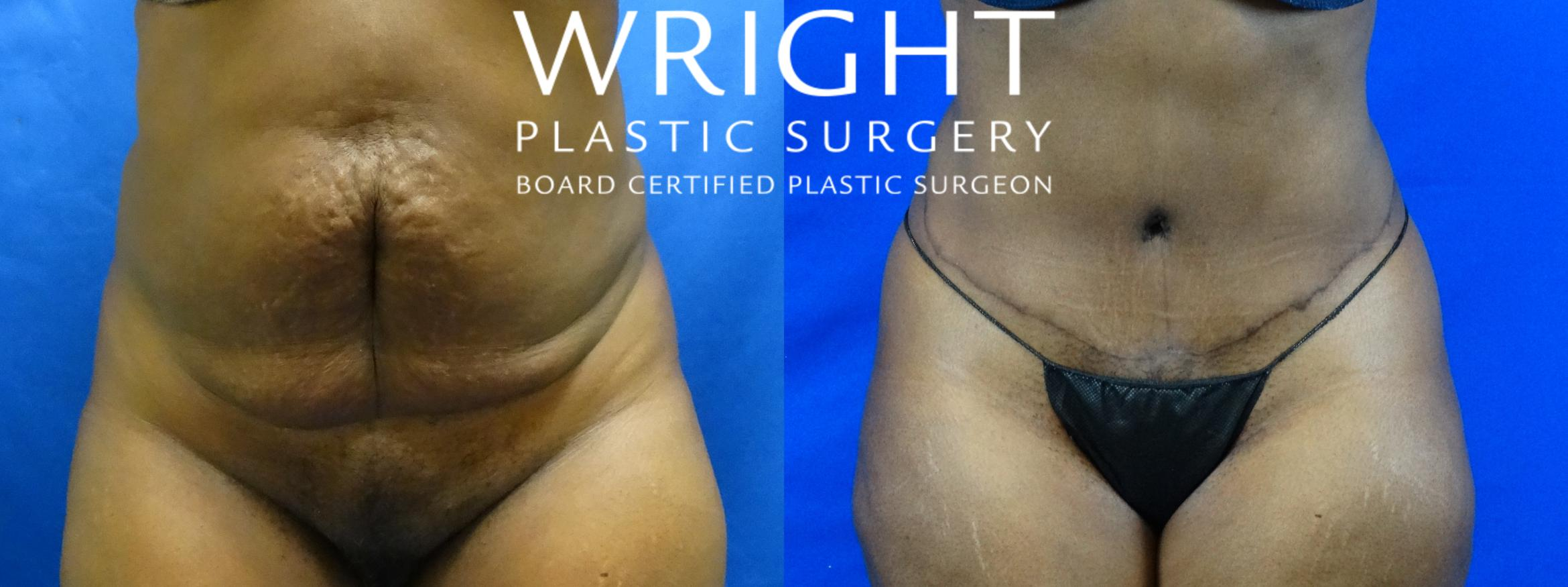 Tummy Tuck Case 19 Before & After Front | Little Rock, Arkansas | Dr. Wright Plastic Surgery