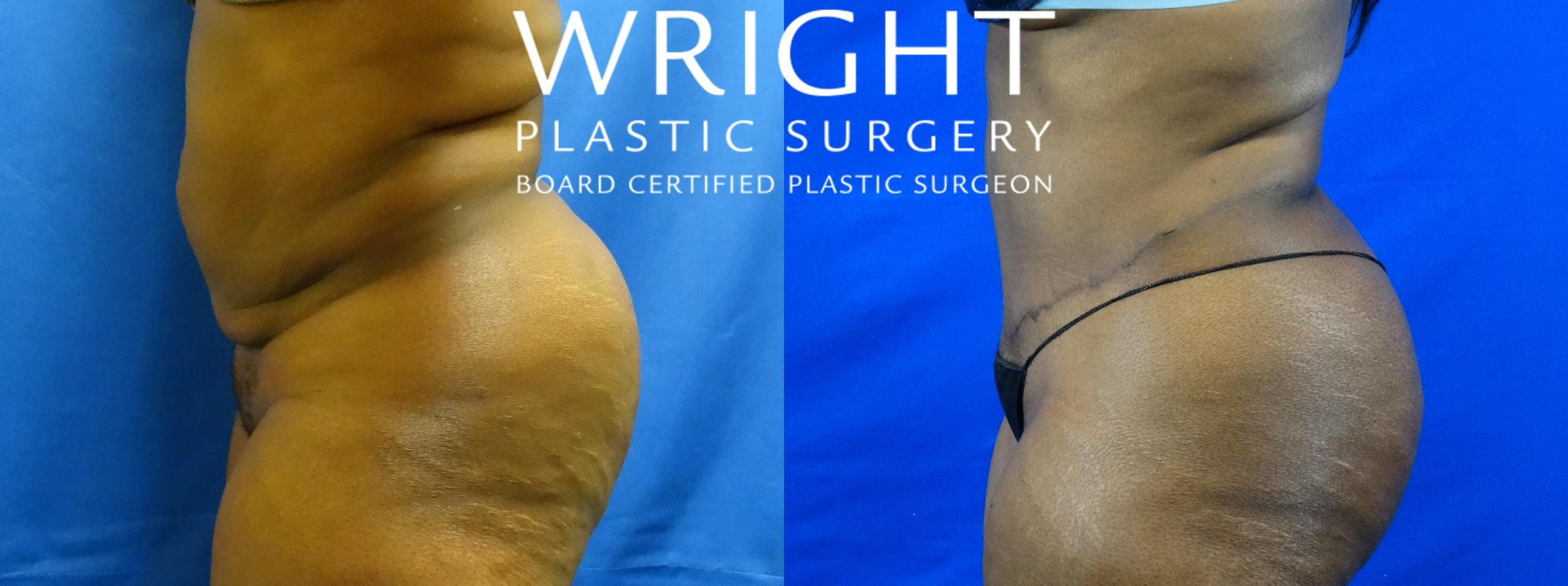 Tummy Tuck Case 19 Before & After Left Side | Little Rock, Arkansas | Dr. Wright Plastic Surgery