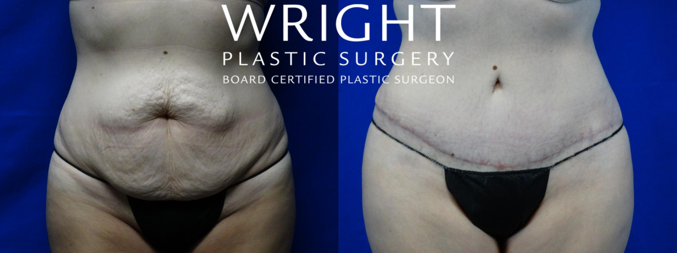Tummy Tuck Case 2 Before & After Front | Little Rock, Arkansas | Dr. Wright Plastic Surgery