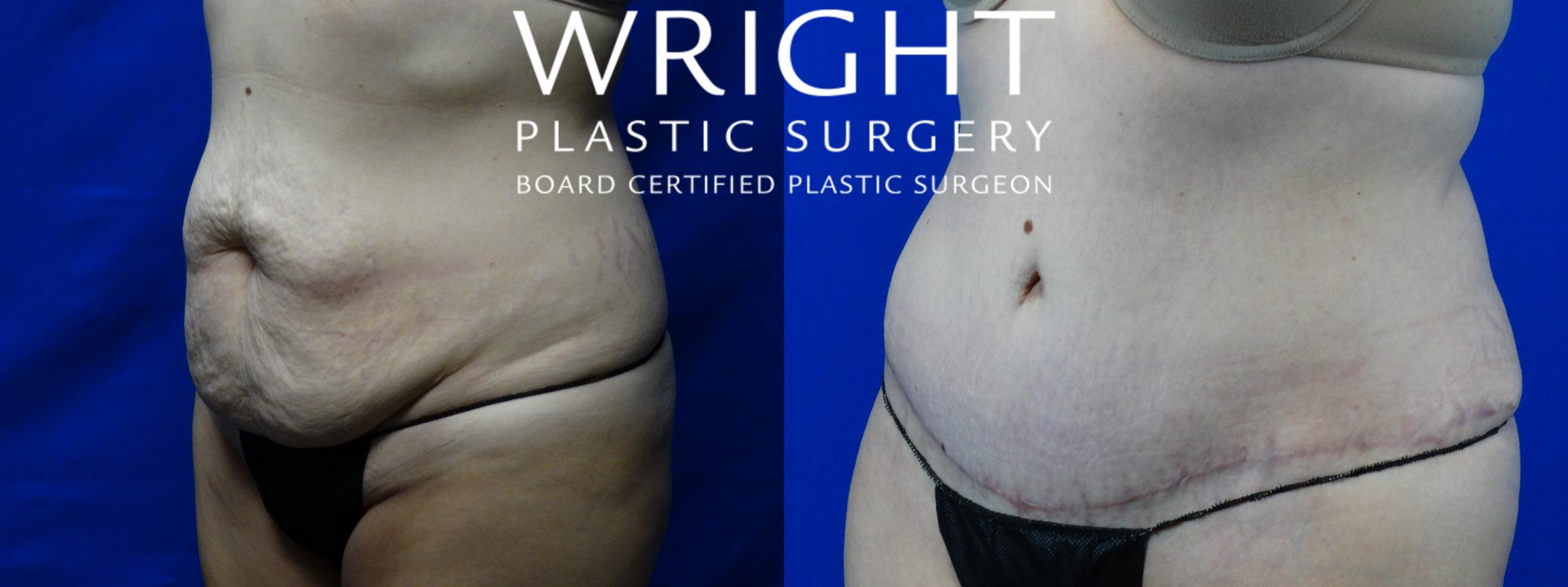 Tummy Tuck Case 2 Before & After Left Oblique | Little Rock, Arkansas | Dr. Wright Plastic Surgery