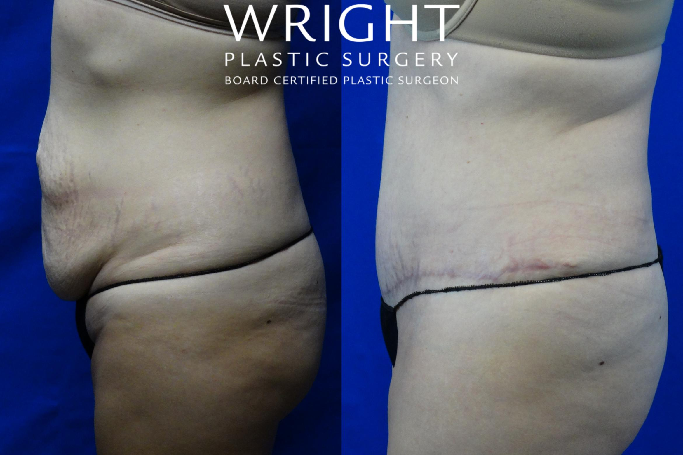 Tummy Tuck Case 2 Before & After Left Side | Little Rock, Arkansas | Dr. Wright Plastic Surgery