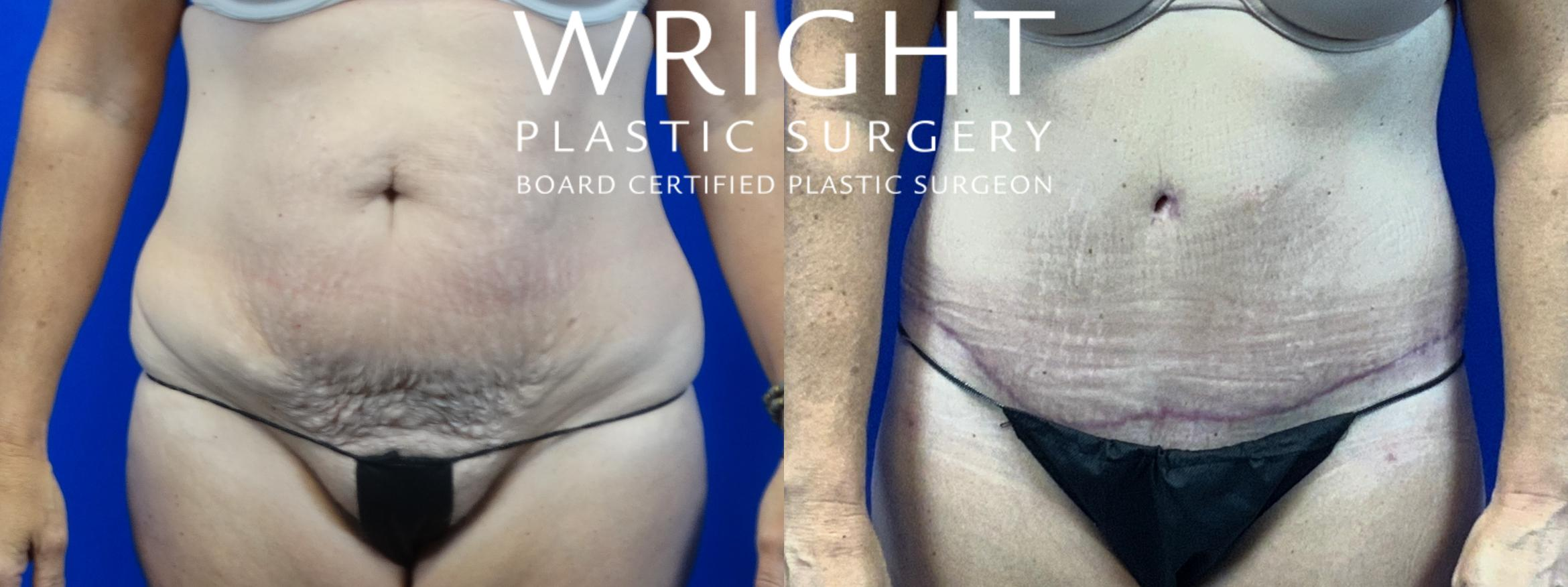 Tummy Tuck Case 29 Before & After Front | Little Rock, Arkansas | Dr. Wright Plastic Surgery