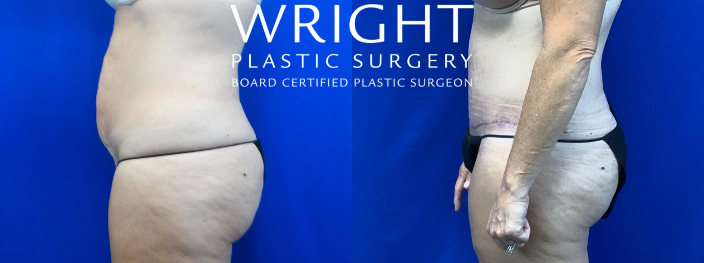 Tummy Tuck Case 29 Before & After Left Side | Little Rock, Arkansas | Dr. Wright Plastic Surgery