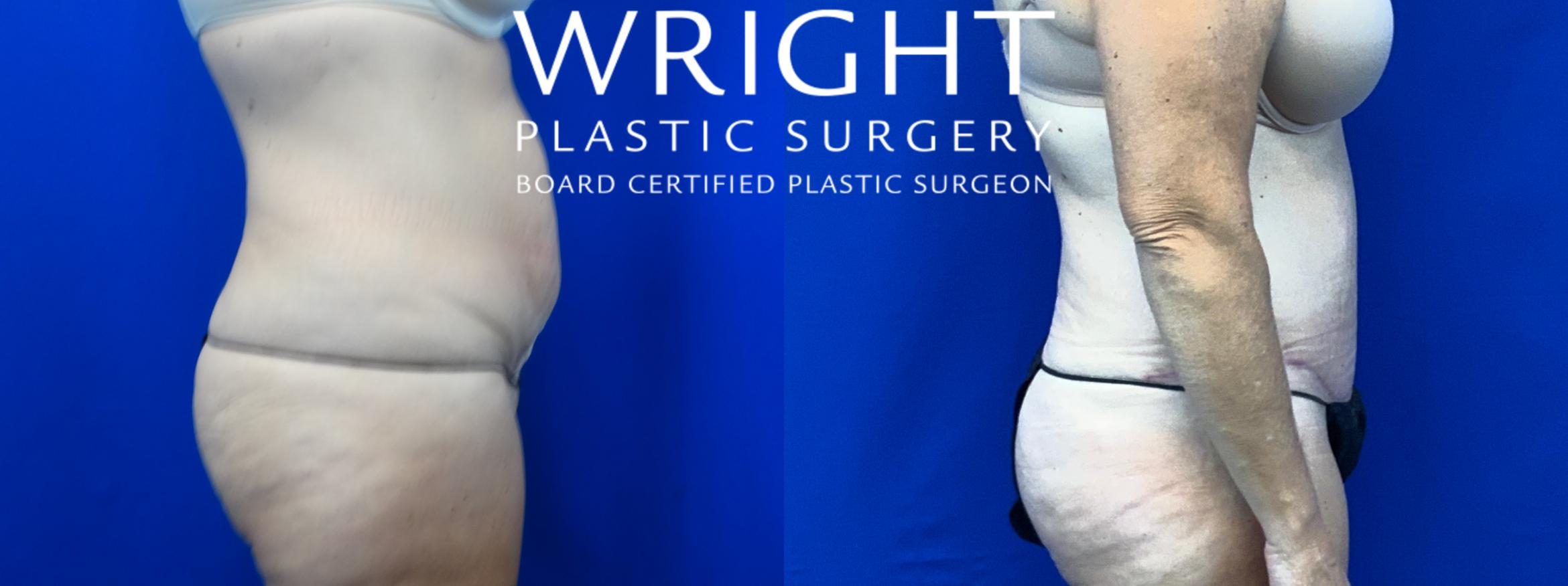 Tummy Tuck Case 29 Before & After Right Side | Little Rock, Arkansas | Dr. Wright Plastic Surgery