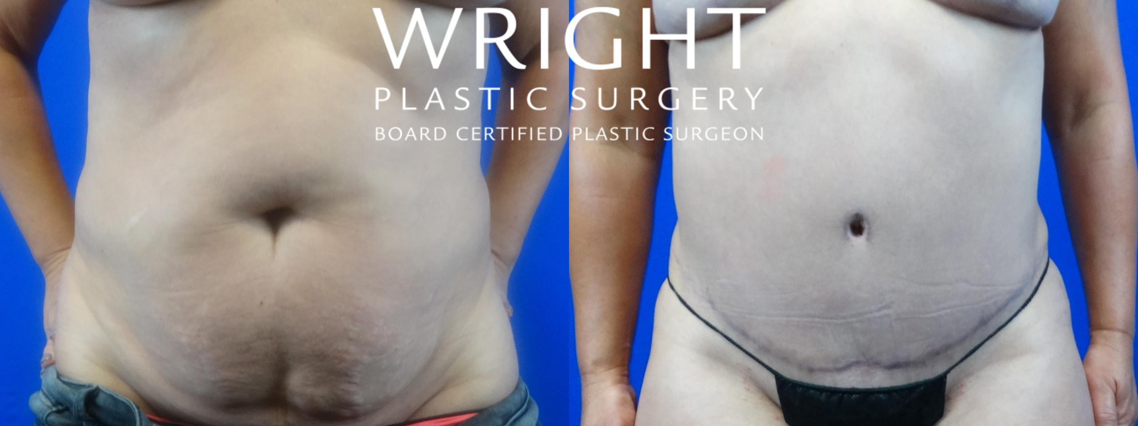 Tummy Tuck Case 32 Before & After Front | Little Rock, Arkansas | Dr. Wright Plastic Surgery