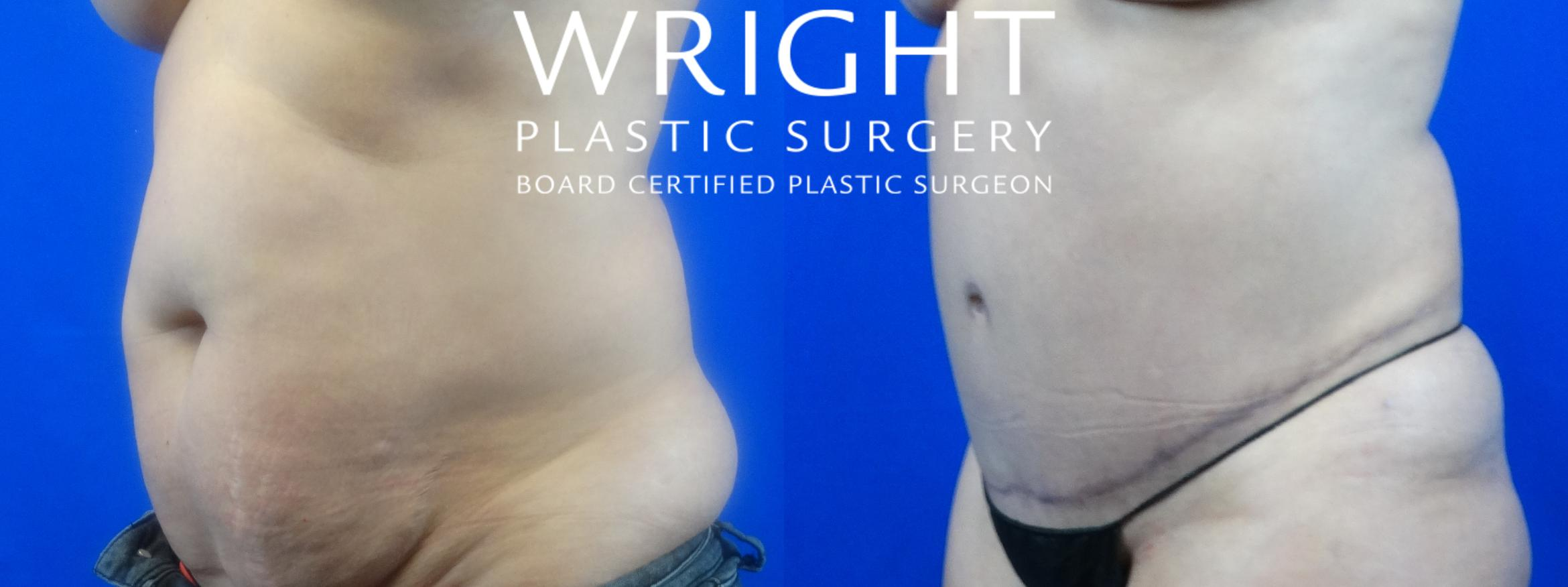 Tummy Tuck Case 32 Before & After Left Oblique | Little Rock, Arkansas | Dr. Wright Plastic Surgery