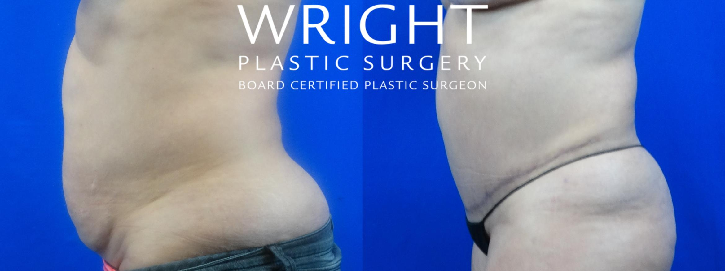 Tummy Tuck Case 32 Before & After Left Side | Little Rock, Arkansas | Dr. Wright Plastic Surgery