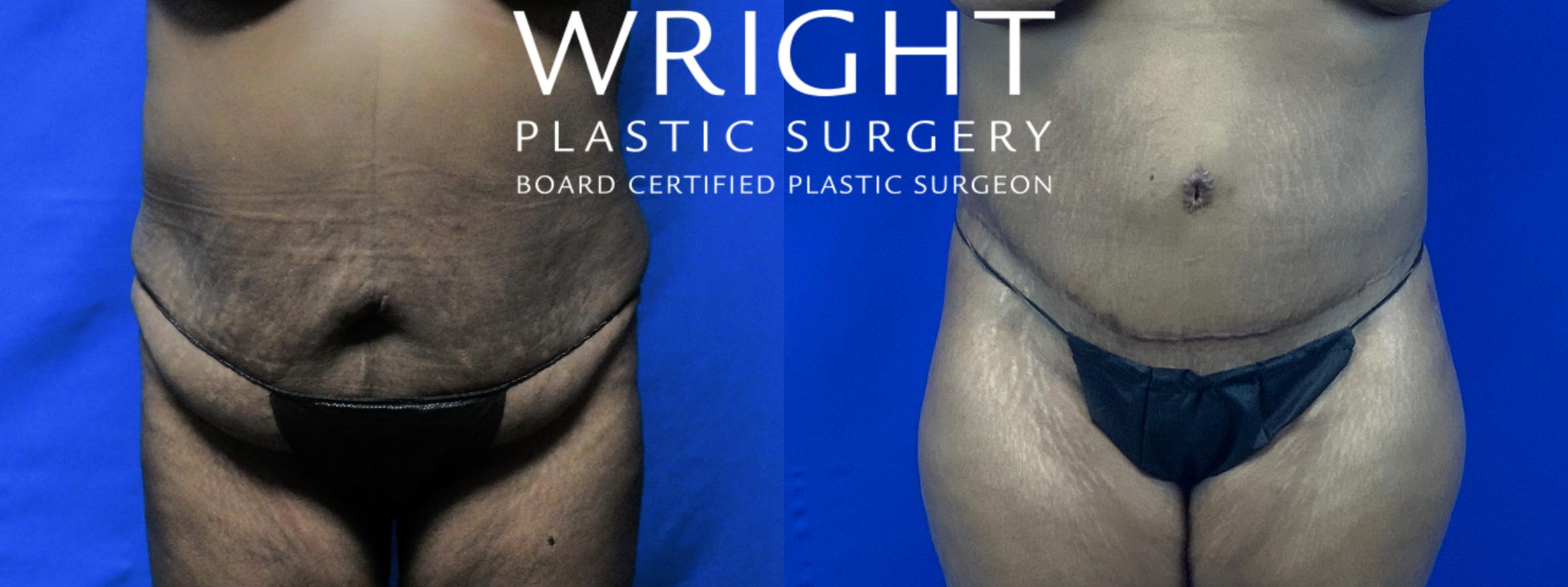 Tummy Tuck Case 57 Before & After Front | Little Rock, Arkansas | Dr. Wright Plastic Surgery
