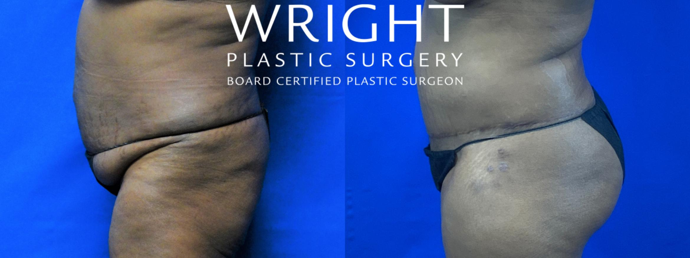 Tummy Tuck Case 57 Before & After Left Side | Little Rock, Arkansas | Dr. Wright Plastic Surgery