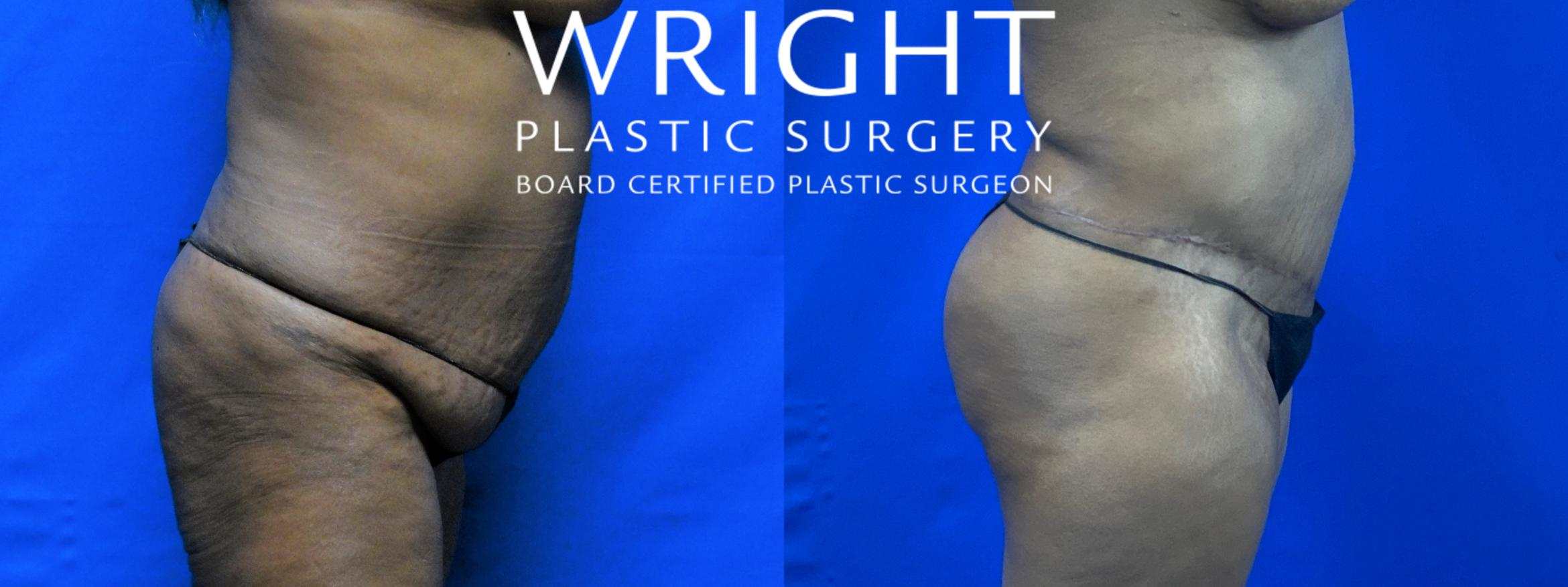 Tummy Tuck Case 57 Before & After Right Side | Little Rock, Arkansas | Dr. Wright Plastic Surgery