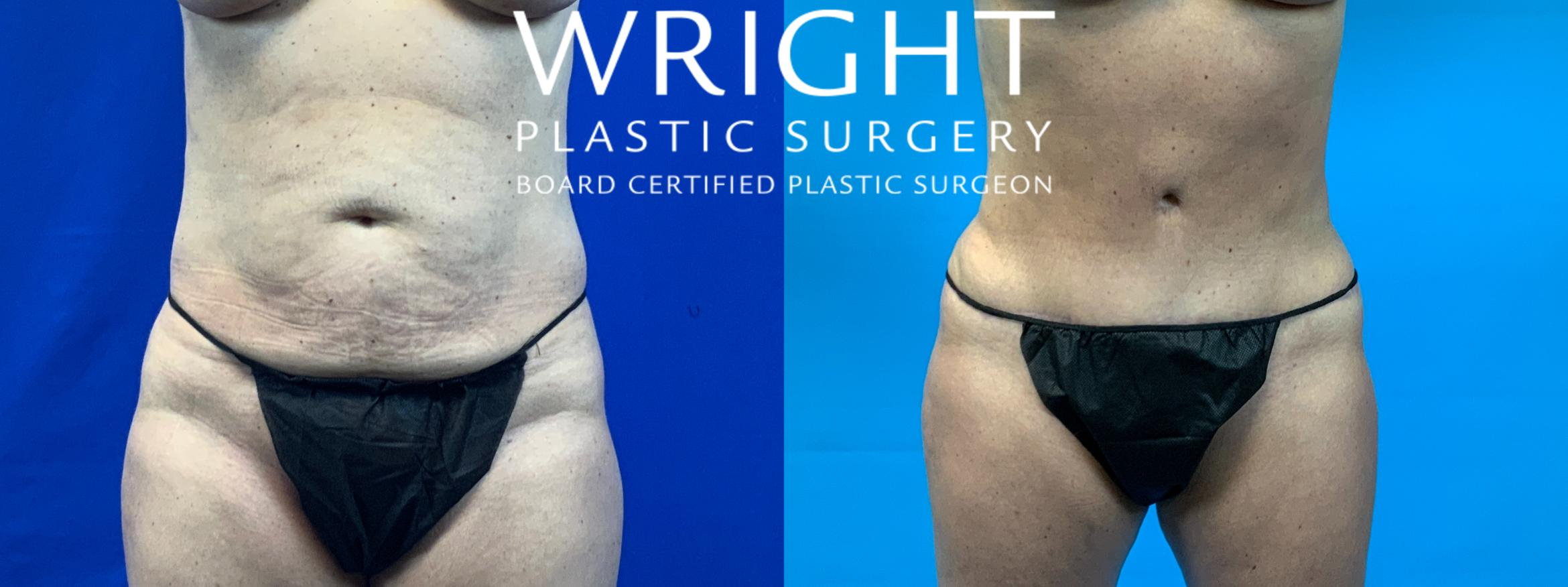 Tummy Tuck Case 61 Before & After Front | Little Rock, Arkansas | Dr. Wright Plastic Surgery