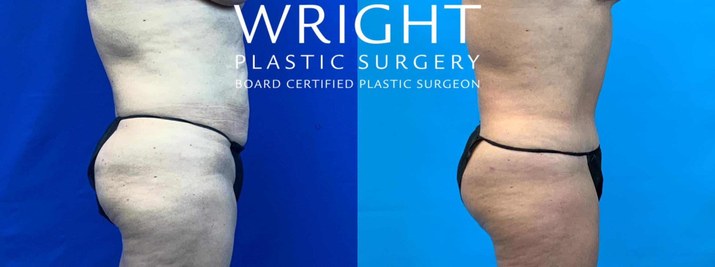 Tummy Tuck Case 61 Before & After Right Side | Little Rock, Arkansas | Dr. Wright Plastic Surgery