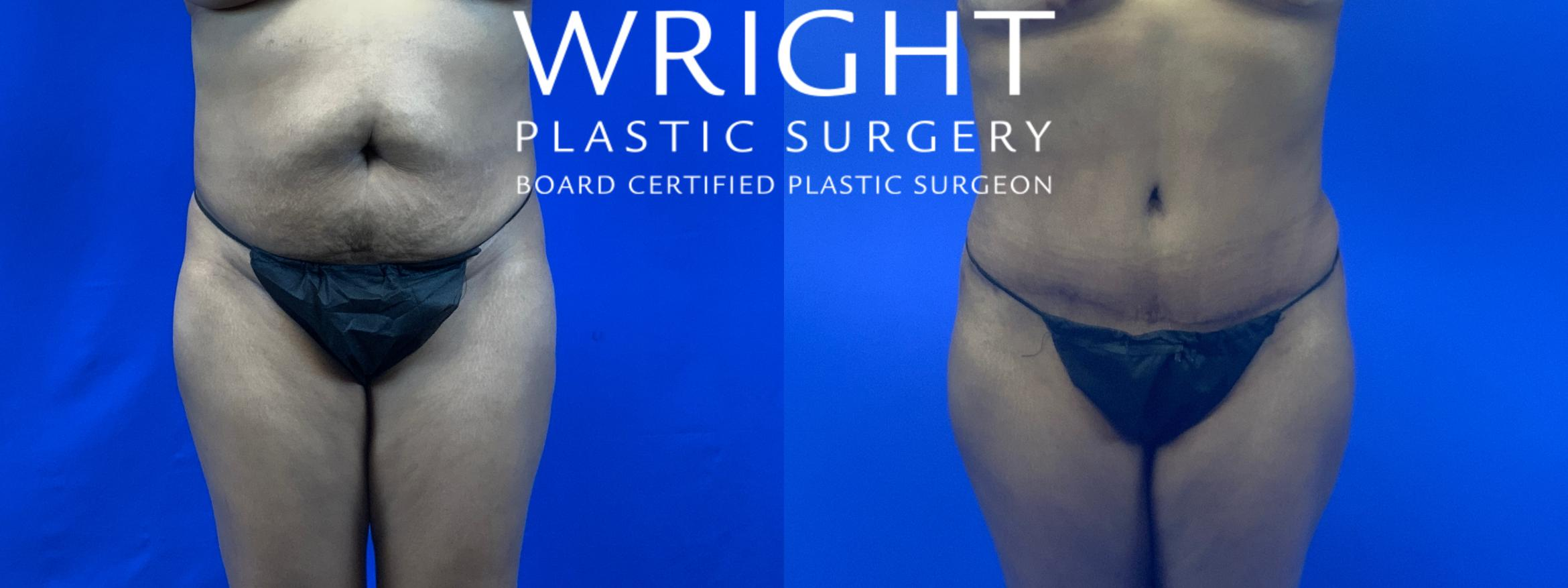 Tummy Tuck Case 63 Before & After Front | Little Rock, Arkansas | Dr. Wright Plastic Surgery