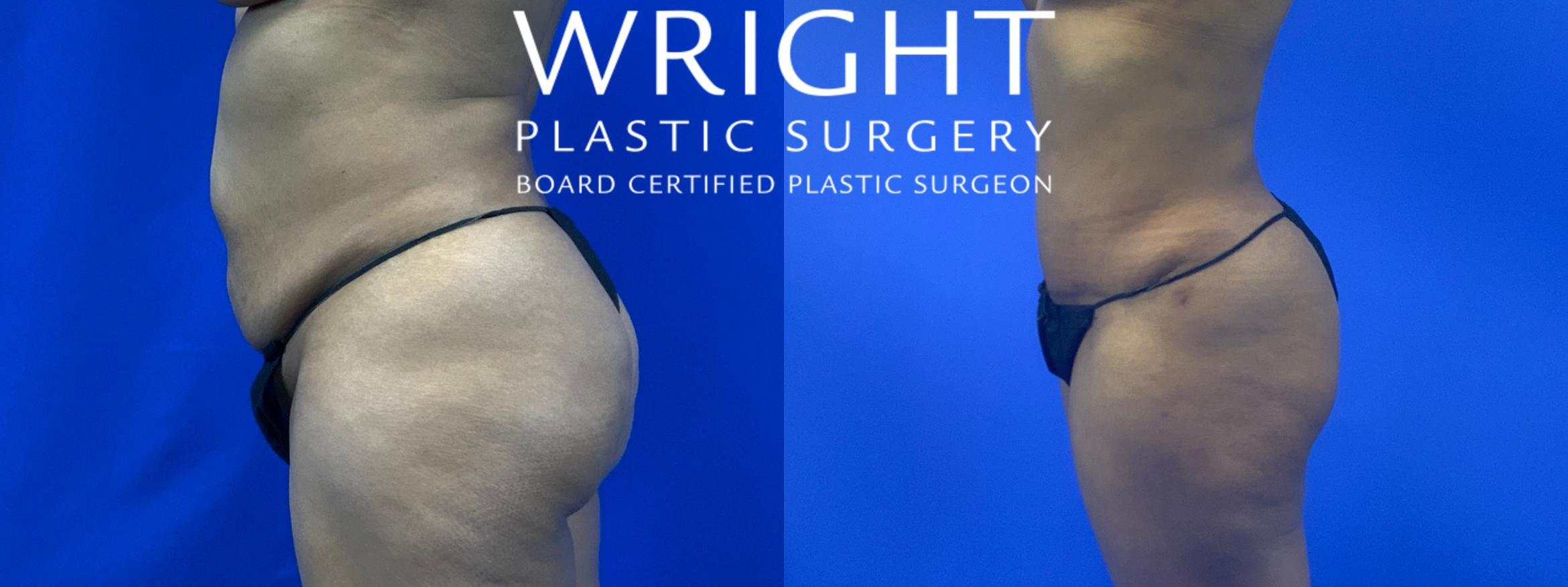 Tummy Tuck Case 63 Before & After Left Side | Little Rock, Arkansas | Dr. Wright Plastic Surgery