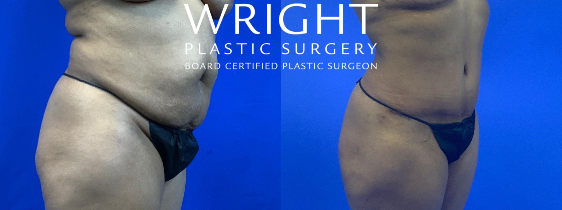 Tummy Tuck Case 63 Before & After Right Oblique | Little Rock, Arkansas | Dr. Wright Plastic Surgery